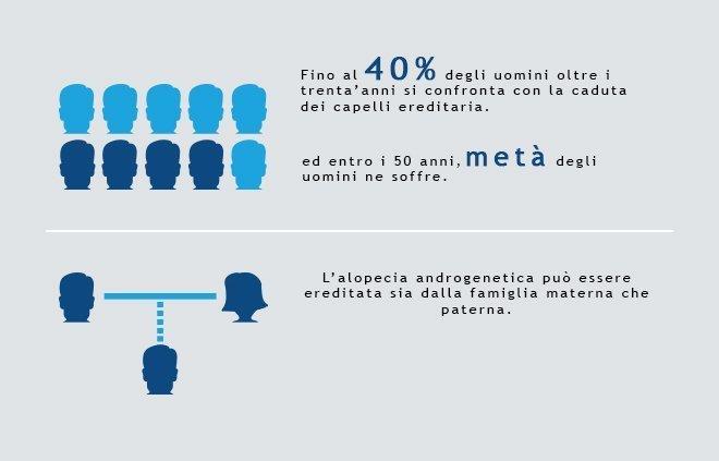 statistiche calvizie negli uomini